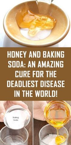 Honey and Baking Soda: An Amazing Cure For The Deadliest Disease in the World! Holistic Health Tips for Beginners, Holistic Wellness Baking Soda And Honey, Baking Soda For Health, Cancer Treatment, Natural Home Remedies, Natural Treatments, Natural Medicine, Herbal Medicine, Healthy Tips, Healthy Foods