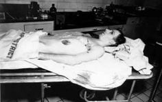 Lee Harvey Oswald autopsy photo - The Weird Picture Archive Indira Ghandi, Morgue Photos, Death Pics, Kennedy Assassination, Post Mortem Photography, Celebrity Deaths, John F Kennedy, Weird Pictures, Scene Photo