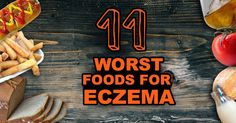 Discover the foods to avoid with Eczema, why you crave them, why it is hard to avoid these foods, and some healthy alternatives.