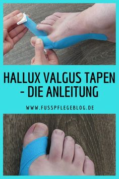 A step-by-step guide to taping your hallux valgus. We show you what you need and explain how you can tap your Hallux Valgus! A step-by-step guide to taping your hallux valgus. We show you what you need and explain how you can tap your Hallux Valgus! Fitness Workouts, Healthy Sport, Kinesiology Taping, Feet Care, Yoga For Beginners, Aerobics, Health Tips, Health Fitness, About Me Blog