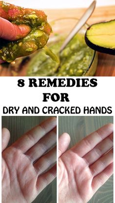 It is said that the hands of a person show her age more than any other body part. Here are 8 tips that help you get rid of cracked and dry hands! Dry Hands Remedy, Dry Cracked Hands, Cracked Skin, Routine, Natural Moisturizer, Homemade Beauty Products, Feel Better, Aloe, The Cure