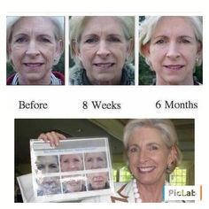 Aging Backwards!!  YES please!   Atlanta area Luxury Realtor, Cynthia Pierce was looking for something to improve her skin for her daughter's wedding. She started using Rodan + Fields Redefine AMP MD system and Multi-Function Eye Cream. Her 6 month results were so profound that our Doctors put her before and after photos into our product guide!   Are you ready to start your journey to younger, healthier looking skin like Cynthia did? Message me and let's get you started, I would love to…