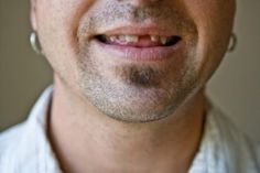 If you are losing teeth in middle age it may indicate the development of heart disease. Dental Hygienist Jobs, Dental Care, Teeth Implants, Dental Implants, Tooth Replacement, Dentist Appointment, Tooth Pain, Dental Bridge, Dental Crowns