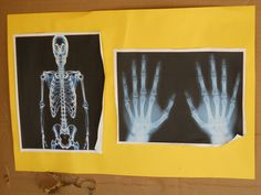 note to self- google x-ray pictures for dr. office theme unit or for vet theme unit