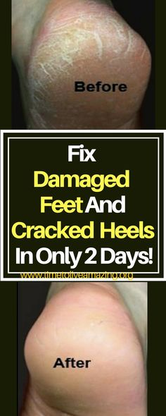 Fix Damaged Feet And Cracked Heels In Only 2 Days! - Time To Live Amazing