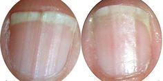 Mergulhar as pontas dos dedos em vinagre de maçã é um remédio muito eficaz para fortalecer as unhas ...