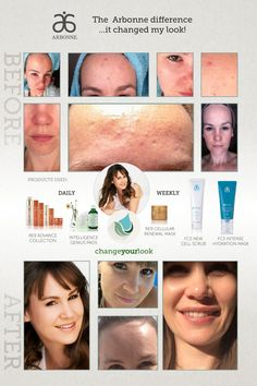 You CAN fix your skin problems! Try Arbonne! I can get you samples. Check me out on facebook: https://www.facebook.com/DonnaLBarnett?ref=aymt_homepage_panel