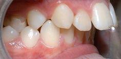 Hô hàm trên – Giải pháp chữa hết hô hiệu quả và triệt để nhất