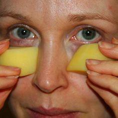 Avoid Botox: How To Remove Eye Bags & Wrinkles In 1 Minute Vicks Vaporub, Skin Care Regimen, Skin Care Tips, Cellulite, Rheumatische Arthritis, Get Rid Of Pores, Les Rides, Younger Skin, Homemade Face Masks