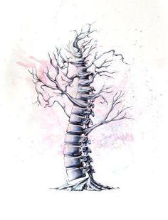 Spine tree.