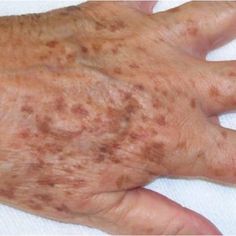 What to do about liver spots (age spots) - Hautbehandlung Age Spot Remedies, Natural Remedies, Skin Care Regimen, Skin Care Tips, Age Spot Treatment, Liver Spot, Age Spots On Face, Age Spot Removal, Skin Problems