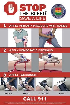 How to stop the bleed and save a life.