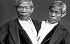 Η απίστευτη ιστορία των σιαμαίων αδερφών με την πλουσιοπάροχη ζωή και τα 21 παιδιά