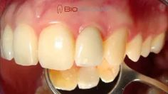 Our anatomic implant replicates the natural form of the tooth, so it simply fits into the tooth socket. And just like your original tooth, BioImplant comes in single- and multi-rooted forms. Cad Cam, Dental Implants, Natural Forms, Dentistry, Tooth, Youtube, Teeth, Youtubers