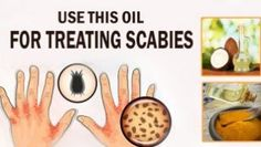 The itchiness, rashes, and redness caused by skin infection called scabies is not an easy thing to bear. Use These Oils For Treating Scabies. Facial Brown Spots, Brown Spots On Skin, Tighten Neck Skin, Korean 10 Step Skin Care, Prevent Wrinkles, Health And Beauty Tips, Face Wash, Remedies, Black Heads