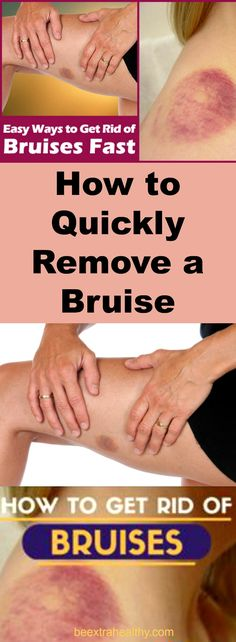 How to Quickly Remove a Bruise