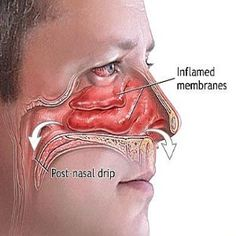 Natural Remedies For Sinus Infection - How To Cure Sinus Infection | MensCosmo.com