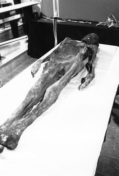 Examen d'une momie à l'Hôpital Edouard-Herriot. - Fonds Lyon Figaro 1986-2006, série recherche scientifique (par Marcos Quinones, photographe) . - Prise de vue 16 août 1989.