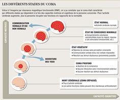 Les différents stades du coma
