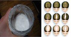 Champú casero de bicarbonato: para hacer crecer el cabello rápido