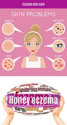 Skin troubles lead to a breakdown in self-confidence. Does this seem like you personally? If it does, continue reading these pinsfor some helpful advice about managing eczema. Eczema Causes, Contact Dermatitis, Plaque Psoriasis, Skin Rash, Skin Problems, Allergies