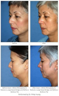 Before & After Asian | Ethnic Rhinoplasty to Reduce a Large Nasal Bridge and Refine a Bulbous Tip