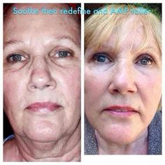 WOW! This is Shelly and her results after being on the Redefine Regimen for only 4 months!! Message me if your ready to turn back the hands of time!! https://iLangman.myrandf.com/shop/redefine   www.facebook.com/IrisLangmanSkincare #bestskincare