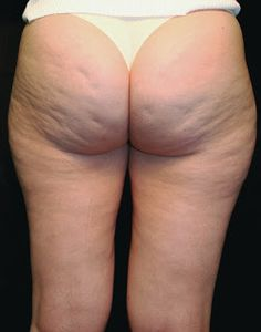 Easy way to get rid of cellulite | Tips Aggregator How To Get Rid Of Cellulite