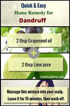 Thicker Hair Remedies natural home remedy for dandruff using just two ingredients. - Dandruff can be difficult to get rid of. Here's are an easy natural home remedy for dandruff using just two ingredients. And It works. Home Remedies For Dandruff, Rosacea Remedies, Home Remedies For Skin, Hair Remedies For Growth, Natural Home Remedies, Hair Growth, Hair Dandruff, Sinus Headache Relief, Beauty