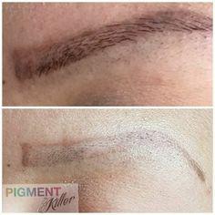 Pigment Killer 15 ml incl. Usb, Events, Facebook, Tattoo