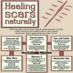 For scars. Pic only.  Fyi