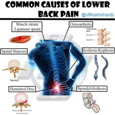 severe pain in back Lower Back Strain, Severe Lower Back Pain, Low Back Pain, Lower Back Pain Exercises, Lower Back Muscles, Lumbar Spinal Stenosis, Spinal Canal, Heavy Weight Lifting, Weight Loss
