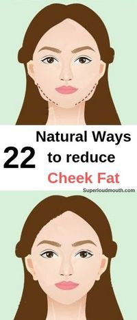 22 Natural ways to lose cheek fat with exercises and other home remedies How to Lose Weight on Face? Top 8 Exercises To Lose Weight In Your Face! Check It Now! Face Fat Loss, Fat Face, Reduce Face Fat, How To Reduce Fat, Lose Weight In Your Face, Cheek Fat, Get Thin, Face Exercises, Stomach Exercises