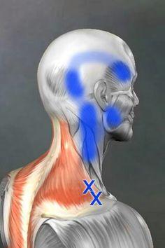 trigger Point: Trapezius. De kruisjes geven de plaats van de triggerpoint aan, het blauwe gebied is het uitstralingsgebied. Daar volet men vaak de pijn.