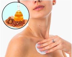 How to Remove Annoying Papillomas and Warts Once For All How To Get Rid Of Acne, How To Remove, Natural Herbs, Warts, Skin Problems, Healthy Nutrition, Home Remedies, Health And Wellness, Facial