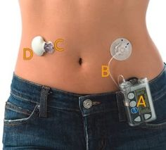 Insulin Delivery Devices - Your Options: Insulin pump