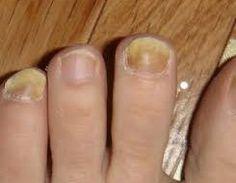 Vložte nohy do tejto zmesi na 10 minút, je to úžasná metóda, ako sa môžete navždy zbaviť húb na nechtoch! Výsledky budú rýchlejšie, ako s akýmkoľvek liekom z lekárne | MegaZdravie.sk