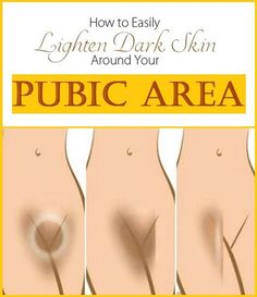 How to Lighten Skin Around Your Pubic Area - How To Lighten Dark Inner Thighs, Butt And Bikini Area Beauty Care, Beauty Skin, Health And Beauty, Skin Tips, Skin Care Tips, Piel Natural, Natural Hair, Natural Beauty, Lighten Skin