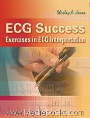 The key to ECG interpretation is pattern recognition, and pattern recognition is developed the same way as any skillthrough repetition. ECG Success illustrates the key features of dozens of arrhythmia Book Annotation, Pattern Recognition, Anatomy And Physiology, Music Games, Mystery Books, Used Books, Case Study, Textbook, Nonfiction