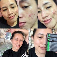 Frontrow soap is the best skin whitening soap that works in 14 days. Frontrow soaps are the most effective whitening soap for the face and body. Skin Whitening Soap, Kojic Acid, Vitamins For Skin, Bright Skin, Uneven Skin Tone, Rosehip Oil, Acne Scars