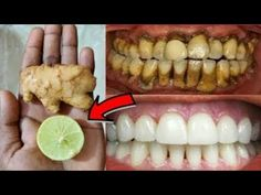 In two minutes this recipe will make dirty yellow teeth like pearls - teeth whitening Teeth Whitening Remedies, Natural Teeth Whitening, Teeth Health, Dental Health, Eyebrow Makeup Tips, Beauty Makeover, Skin Tag Removal, Natural Health Remedies, White Teeth