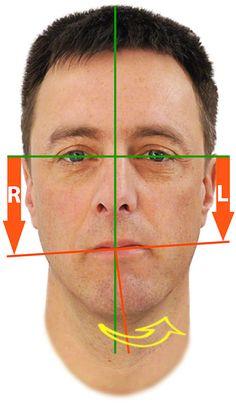 Kieferfehlstellung und Kieferschmerzen