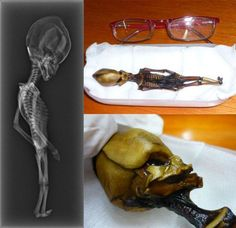 Bizarre 6-Inch Skeleton Shown to Be Human | Science/AAAS | News