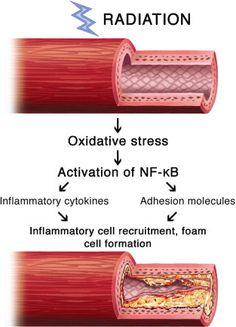 radiation induced vascular disease- vascular ultrasound, vascular technology,