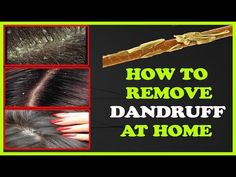 How To Remove Dandruff From Hair Permanently At Home