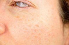 Treatment For Vitiligo Topically-Natural Treatment For Vitiligo On Lips Age Spot Treatment, Liver Spot, Vitiligo Treatment, Skin Grafting, Spots On Face, Skin Spots, Remover, Dark Spots, Brown Spots