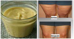 La celulitis es una inflamación en el tejido de la piel,integrada por depósitos de grasa que forman una especie de pequeñas bolsas y hendiduras. Esta suele aparecer en los muslos de las piernas, brazos e incluso el abdomen. LEER MÁS: El agua de piña sera tu aliada ¡Mira sus beneficios! Esta …