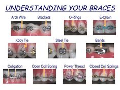 Braces vocabulary and diagram.  This could be very helpful