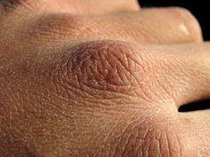 Remède pour soigner les mains gercées et crevasses naturellement en hiver