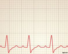 Cardiology rhythm Power Point Template with chart